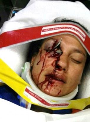 28ECC6BF00000578-0-Injuries_include_those_suffered_by_Stephanie_Erdman_of_Destin_Fl-m-15_1432199633602